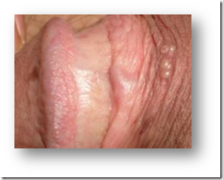 ヘルペス 男性 症状 精 器