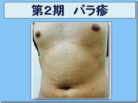 泌尿器科専門医 ドクター尾上の医療ブログ 梅毒が心配!