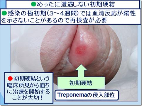 泌尿器科専門医 ドクター尾上の医療ブログ 【梅毒】
